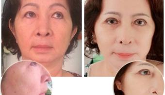 Hình ảnh căng da vùng mặt