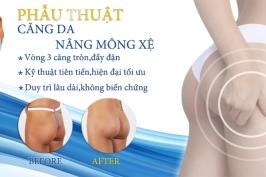 Phẫu thuật căng da nâng mông xệ