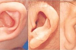 Phẫu thuật tai dị dạng tốn bao nhiêu tiền