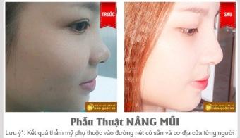 Hình ảnh thẩm mỹ mũi S line