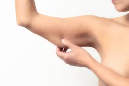 Hút mỡ bắp tay cho cánh tay thon gọn thẩm mỹ