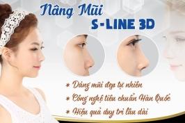 Nâng mũi S line 3D là gì?