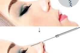 Sửa mũi hếch ngắn thành mũi kín an toàn