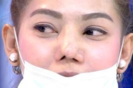 Sửa mũi hỏng do phẫu thuật thẩm mỹ