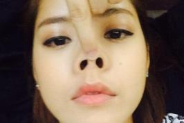 4 khuyết điểm phổ biến trên chiếc mũi người Việt