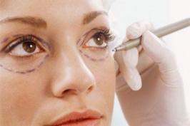 Cắt da thừa mí mắt có tác dụng gì?