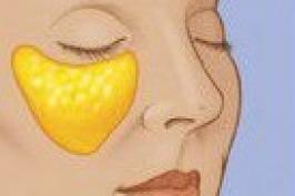 Cắt mí mắt dưới giúp trẻ hóa vùng mắt nhanh chóng