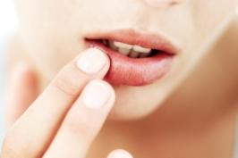 Chăm sóc cho đôi môi thêm rạng rỡ