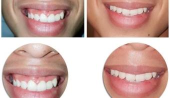 Hình ảnh trước sau phẫu thuật cười hở lợi