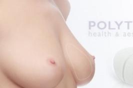 Nâng ngực bằng túi xốp công nghệ Hàn Quốc
