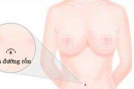 Nâng ngực qua đường rốn hiệu quả thẩm mỹ