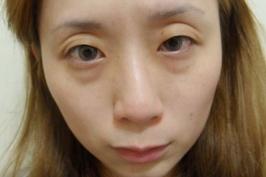 Thẩm mỹ lấy mỡ mắt đánh bật dấu hiệu tuổi tác