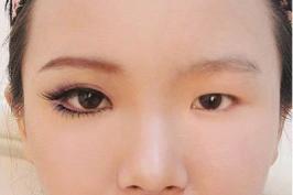 Phẫu thuật mắt to tròn - Những điều cần biết