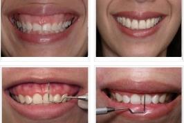 Phẫu thuật cười hở lợi bao lâu thì lành