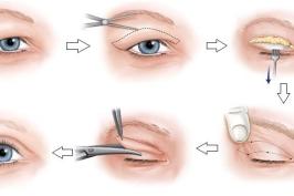 Quy trình cắt mí mắt như thế nào?