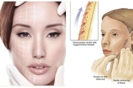 Căng da mặt bằng chỉ không cần phẫu thuật