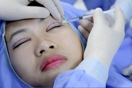 Phẫu thuật mắt xếch có an toàn không