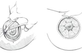 Vị trí đặt đường mổ nâng ngực giấu sẹo hiệu quả
