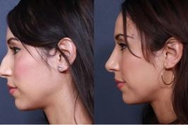 Giá phẫu thuật thu nhỏ đầu mũi bao nhiêu tiền?