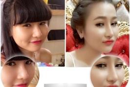 Phẫu thuật nâng mũi tái cấu trúc Hàn Quốc