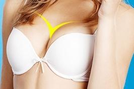 Phẫu thuật nâng ngực Y line công nghệ Hàn Quốc