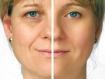 Sự khác biệt giữa chất làm đầy Filler và chất giãn cơ