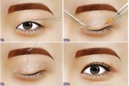 Bấm mí mắt Hàn Quốc có đau không?