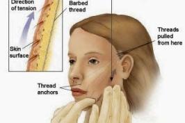 Vì sao căng da bằng chỉ được ưa chuộng