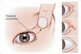 Bạn biết gì về phẫu thuật mở rộng đuôi mắt