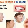 Phẫu thuật hàm hô móm và 3D clear