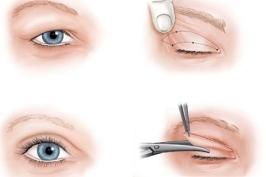 Cắt da thừa mí mắt trên giúp trẻ hóa vùng mắt