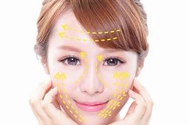 Chi phí căng da mặt bằng chỉ vàng 24k