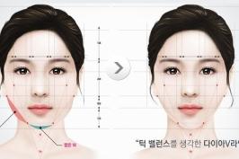 Phẫu thuật gọt mặt như thế nào?