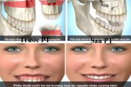 Chữa cười hở lợi có khó không