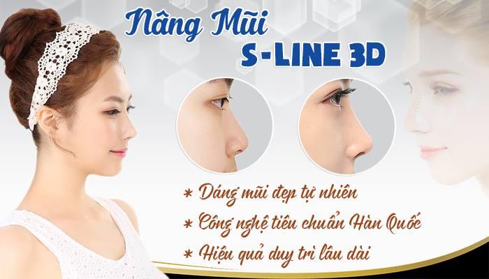 nâng mũi s line 3D là gì