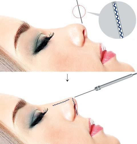 sửa mũi hếch ngắn