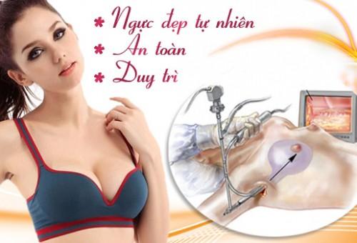 phẫu thuật nâng mông nội soi 3d