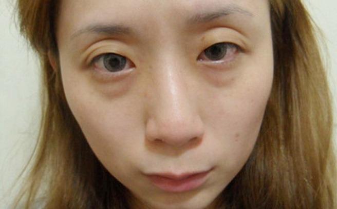 Kết quả hình ảnh cho mắt kém linh hoạt